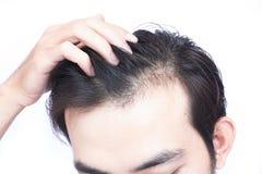 Problème sérieux de perte des cheveux de jeune homme pour des soins de santé médicaux et photos stock