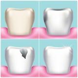 Problèmes, carie, plaque et maladie des gencives dentaires, illustration saine de vecteur de dent Photos stock