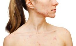 Problèmes de peau Photo libre de droits