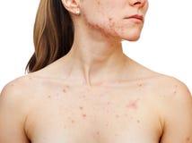 Problèmes de peau Images libres de droits