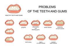 Problèmes des dents et des gommes Images libres de droits