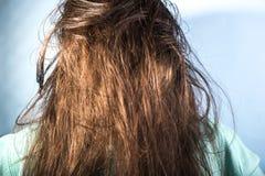 Probl?mes huileux de cheveux chez les femmes Cheveux sales Peau de probl?me entendre images stock