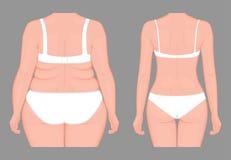 Problem_Body viktförlust för människokropp av europeiska kvinnor från obesi Royaltyfri Bild