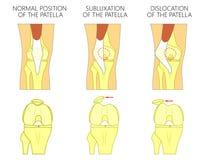 Problem_Dislocation da articulação do joelho da patela Fotos de Stock Royalty Free