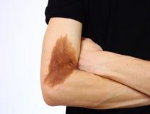 problem skóra zdjęcie royalty free