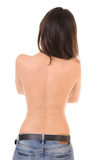 Problem skin on female back. Pimples and redness on back of young girl, isolated on white background Stock Photography
