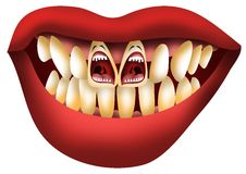 Problem Teeth Screaming for Help Stock Photography