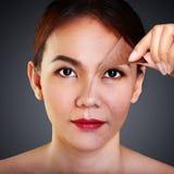 Problem und saubere Haut Stockfoto