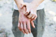 Problem wiele ludzie - egzema na ręce Uliczny tło Obsługuje itchind łuszczycy skórę z czerwonymi wysypkami i punktami obrazy royalty free