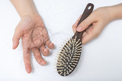 Problema da queda de cabelo foto de stock royalty free