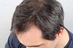 Problema da queda de cabelo do homem foto de stock
