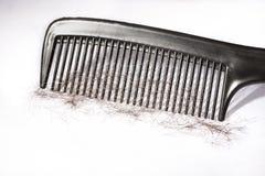 Problema de la pérdida de pelo imágenes de archivo libres de regalías