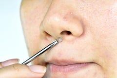 Problema de pele com doenças da acne, fim acima da cara da mulher que espreme espinhas do whitehead no nariz com a ferramenta da  fotos de stock