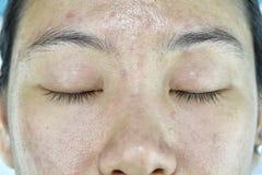 Problema de pele facial, problema de envelhecimento no adulto, enrugamento, cicatriz da acne imagens de stock royalty free