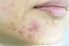 Problema de piel con enfermedades del acné, cierre encima de la cara de la mujer con las espinillas del whitehead en la barbilla foto de archivo libre de regalías