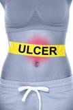 Problema de salud de la úlcera estomacal que muestra el abdomen de la mujer Imagenes de archivo