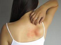 Problema de salud mujer que rasguña su parte posterior que pica con la erupción de la alergia Fotos de archivo