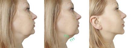 Problema dell'incurvatura del doppio mento della donna prima e dopo il trattamento di procedura fotografia stock libera da diritti