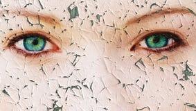 Problema di pelle Immagini Stock Libere da Diritti