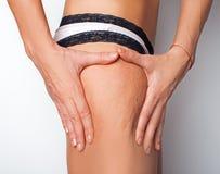 Problema di pelle delle donne - cellulite immagine stock libera da diritti