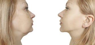 Problema di plastica cascante del doppio mento della donna prima e dopo il trattamento di procedura fotografia stock libera da diritti