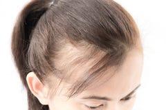 Problema sério da queda de cabelo da mulher para o champô e o Beau dos cuidados médicos imagem de stock