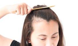Problema sério da queda de cabelo da mulher para o champô e o Beau dos cuidados médicos Fotos de Stock Royalty Free