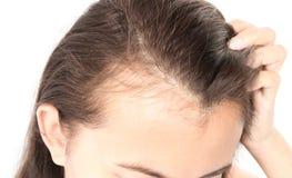 Problema sério da queda de cabelo da mulher para o champô e o Beau dos cuidados médicos Fotografia de Stock