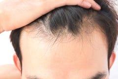 Problema sério da queda de cabelo do homem novo para o champô dos cuidados médicos e Foto de Stock Royalty Free