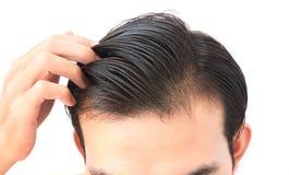 Problema sério da queda de cabelo do homem novo para o champô dos cuidados médicos e Imagens de Stock