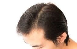 Problema sério da queda de cabelo do homem novo para o champô dos cuidados médicos e Fotos de Stock