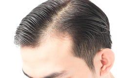 Problema sério da queda de cabelo do homem novo para o champô dos cuidados médicos e Foto de Stock