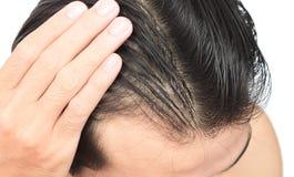 Problema sério da queda de cabelo do homem novo para o champô dos cuidados médicos e Imagens de Stock Royalty Free