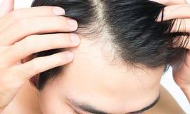Problema sério da queda de cabelo do homem novo para o champô dos cuidados médicos e Imagem de Stock Royalty Free