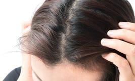 Problema serio de la pérdida de pelo de la mujer para el champú y el galán de la atención sanitaria imagen de archivo