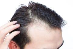 Problema serio di perdita di capelli del giovane per lo sciampo di sanità e immagini stock