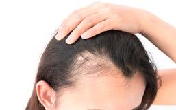 Problema serio di perdita di capelli della donna per lo sciampo ed il damerino di sanità fotografia stock libera da diritti