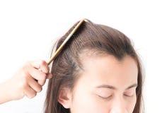 Problema serio di perdita di capelli della donna per lo sciampo ed il damerino di sanità Fotografia Stock