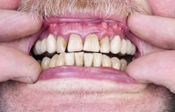 Problemas com os dentes e as gomas Fotos de Stock