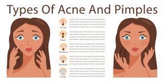 Problemas da acne da pele Fotos de Stock Royalty Free