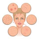 Problemas da pele ilustração stock