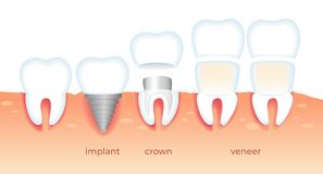 Problemas de los dientes Diente enfermo en goma Estomatología ilustración del vector