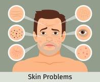Problemas de pele faciais masculinos ilustração royalty free