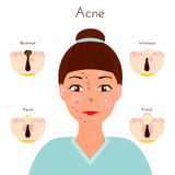 problemas de piel Closse de la muchacha encima de la cara con diversos tipos de espinillas del acné Tratamientos y vector faciale Imagen de archivo libre de regalías