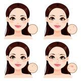 Problemas de piel de la mujer