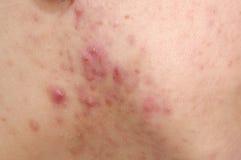 Problemas del acné Fotografía de archivo