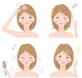 Problemas del pelo de la mujer Imagenes de archivo