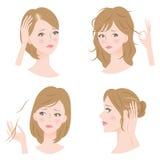 Problemas del pelo de la mujer Fotos de archivo libres de regalías