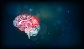 Problemas do cérebro humano ilustração do vetor