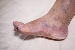 Problemas mayores de la pierna Fotos de archivo